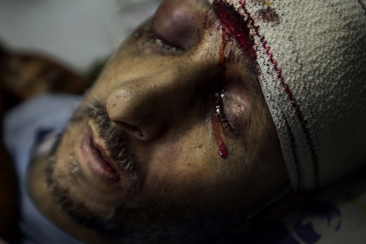 Hussein Saleh Hassan, 52, is fatally wounded. He was hit in the head by a gunshot when he together with a group of local residents attacked and burned down the central police station in Tobruk on 17 February. This was one of the very first violent attacks performed by civilians during the Libyan revolution.